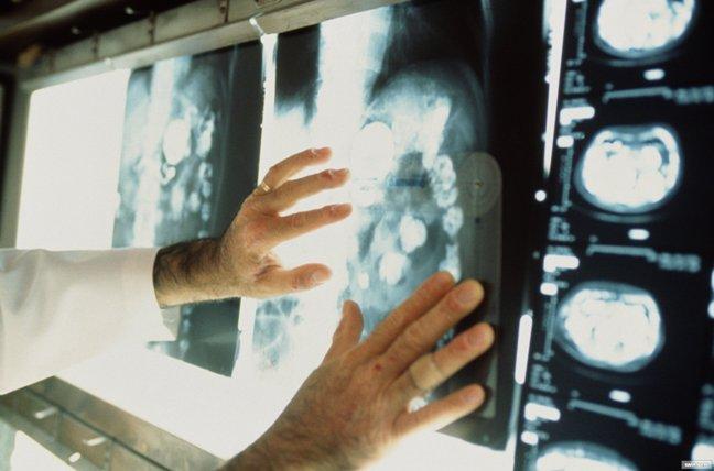 У 37 тысяч курян выявили онкозаболевание