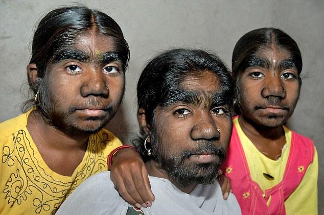 Заросшее лицо фото фото 794-149