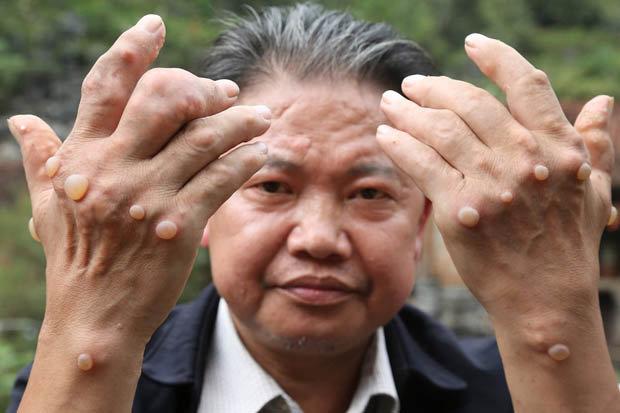 В китайской деревне загадочная эпидемия опухолей (5 фото)
