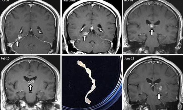 В мозгу мужчины четыре года жил редкий червь-паразит (4 фото)