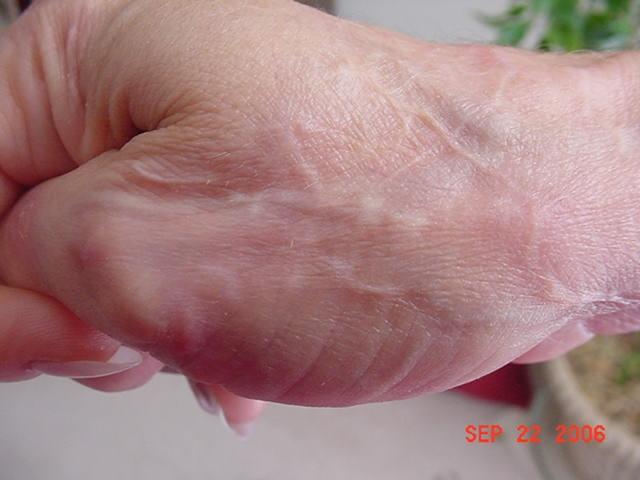 глисты у человека лечение народными