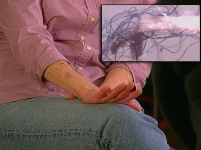 Болезнь моргеллонов: Атака нанороботов? (6 фото)