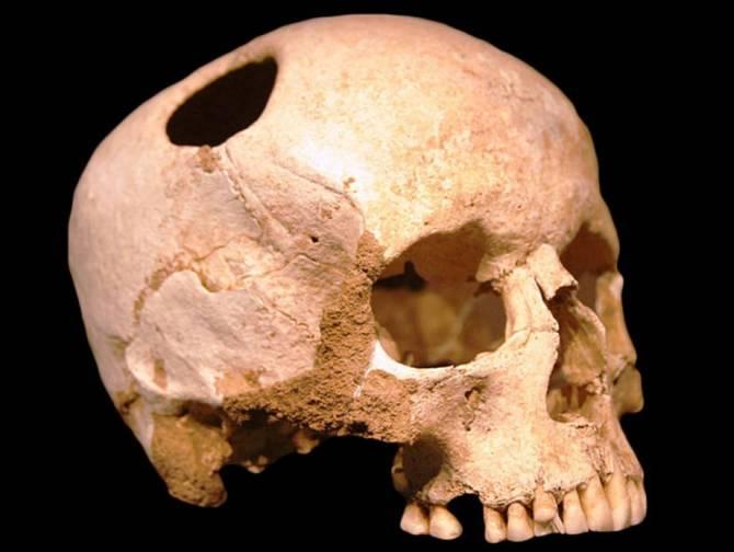 Древняя сибирская практика трепанации черепа (2 фото)