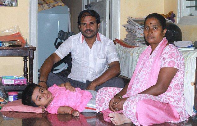 """19-летняя девушка из Индии """"заперта"""" в теле двухлетнего ребенка (4 фото)"""