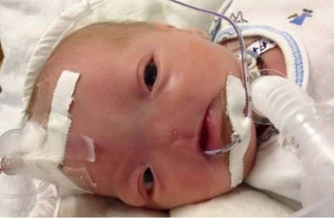 В США родился мальчик без носа (4 фото)