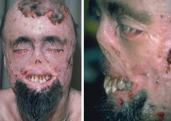 Вампиризм с мифологической, оккультной и медицинской точки зрения (5 фото)