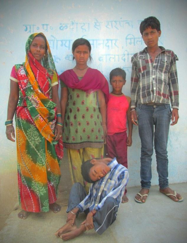 """Индийские врачи не могут понять чем болен мальчик с """"резиновой"""" шеей (5 фото)"""