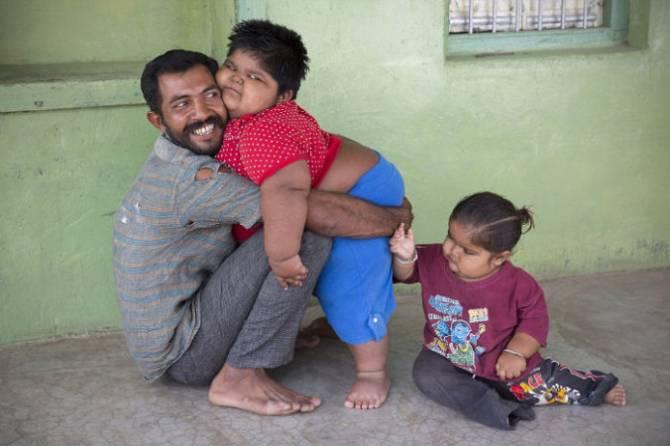 Из-за редкого генетического сбоя три индийских ребенка страдают сильным ожирением (4 фото)