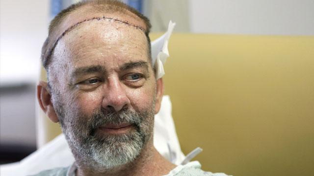 Врачи впервые произвели удачную пересадку части черепа вместе с волосами  (2 фото)