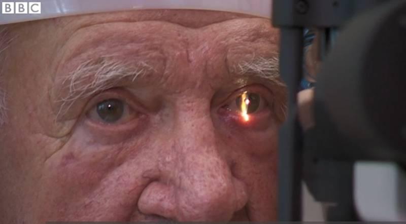 В Великобритании впервые вживили пациенту бионический глаз (2 фото)