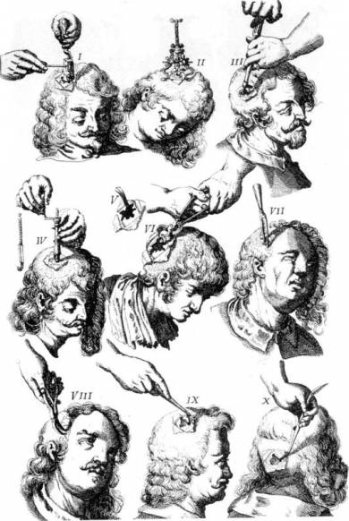 Трепанация черепа для расширения сознания (8 фото)