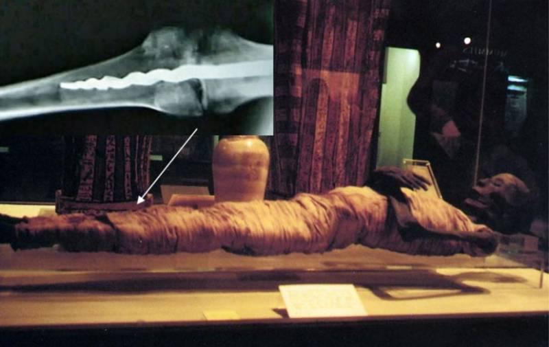 Медицинская загадка: штифт современного типа в ноге мумии (5 фото)