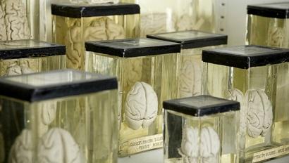 За сохраненный для оживления мозг дадут 100 тысяч долларов
