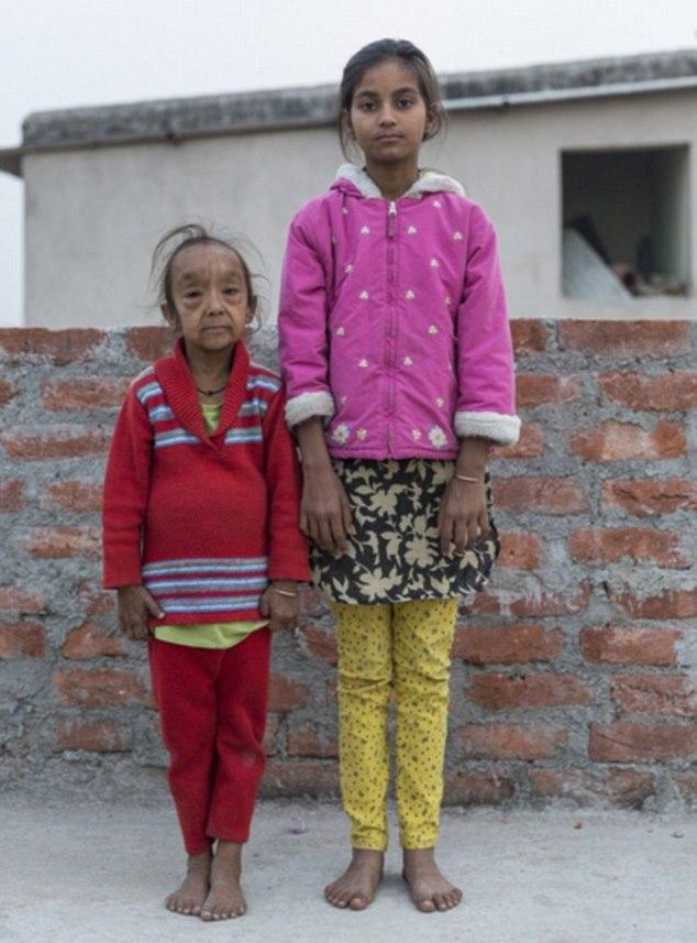 Дети-старички из Индии (10 фото)