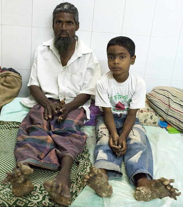 """Семья """"людей-деревьев"""": Страшная болезнь поразила отца, дядю и сына (7 фото)"""
