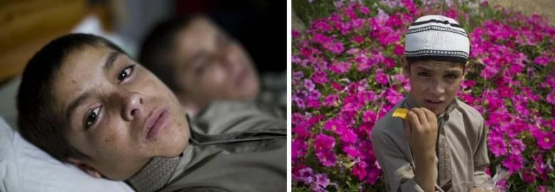 Странная болезнь двух братьев, паралич с наступлением ночи (3 фото)