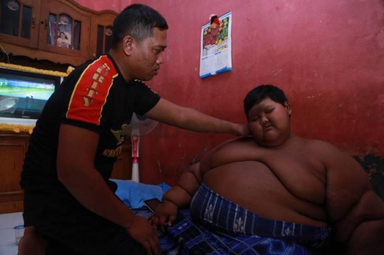 Арья Пермана - самый толстый ребенок в мире (12 фото)