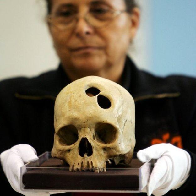 Зачем наши предки проделывали друг другу отверстия в черепе (6 фото)