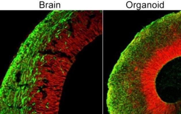 Учёные выращивают человеческий мозг, способный в перспективе думать и чувствовать