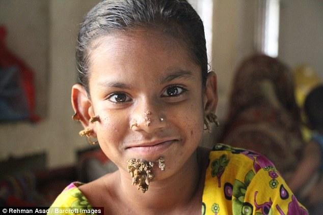"""Первая в мире """"девочка-дерево"""" появилась в Бангладеш (4 фото)"""