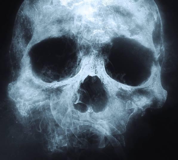 """""""Когда Смерть приходила ко мне, я чувствовала ее запах"""""""