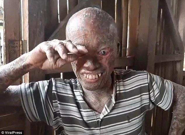 Из-за редкого заболевания парень выглядит как персонаж из фильма ужасов (6 фото + видео)