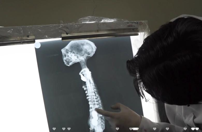 В Перу найдена мумия настоящего инопланетянина? S84795470