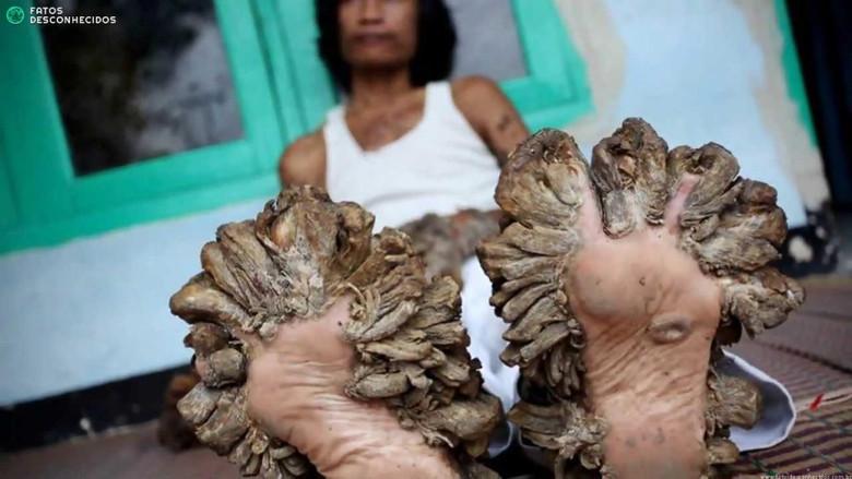"""В Израиле врачи вылечили местного """"человека-дерево"""" удалив наросты вместе с кожей (3 фото)"""