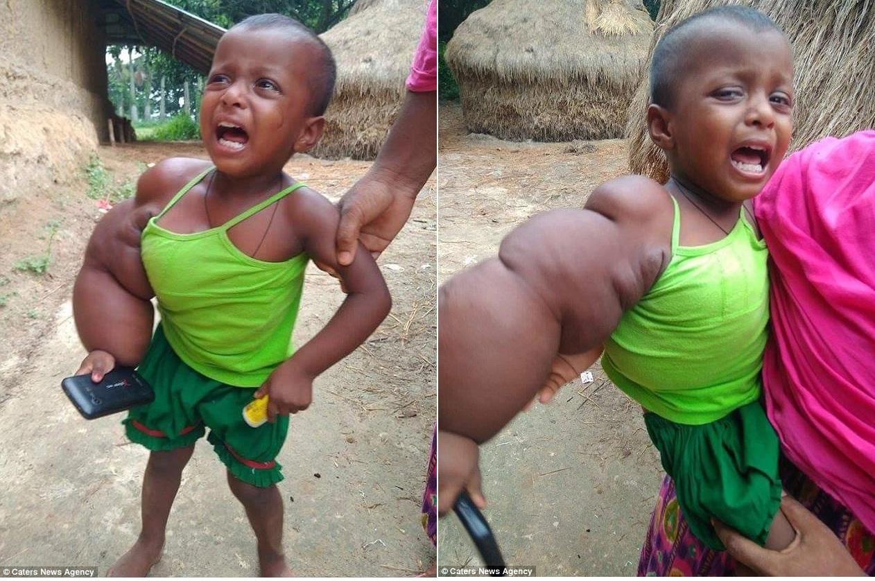 У двухлетнего малыша из Бангладеш одна рука уже почти размером с туловище