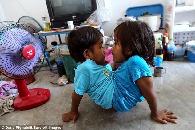 У 7-летних сиамских близнецов из Таиланда одна на двоих нижняя часть тела