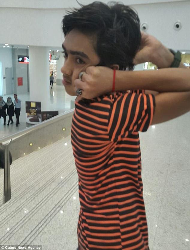 Пакистанский мальчик невероятным образом может выворачивать голову назад как сова