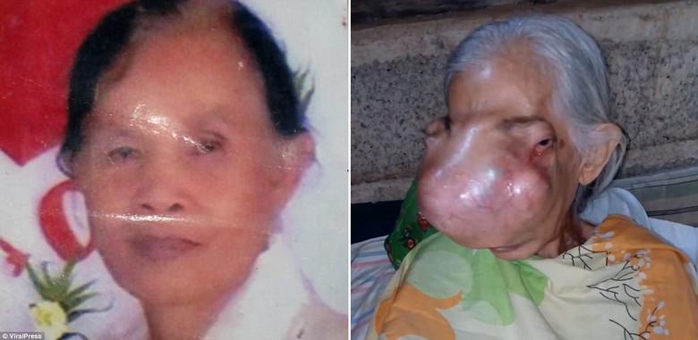 Страшная опухоль раскрошила женщине всю лицевую часть черепа (3 фото)