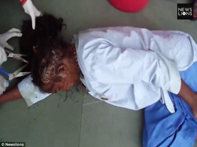 В Индии спасли женщину, чью голову заживо поедали личинки (Осторожно, шокирующий контент! 18+)