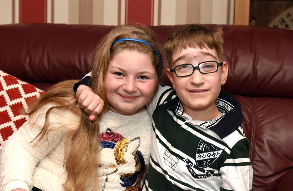 Мальчик, который родился с куском мозга наружу, отпраздновал 10-летие