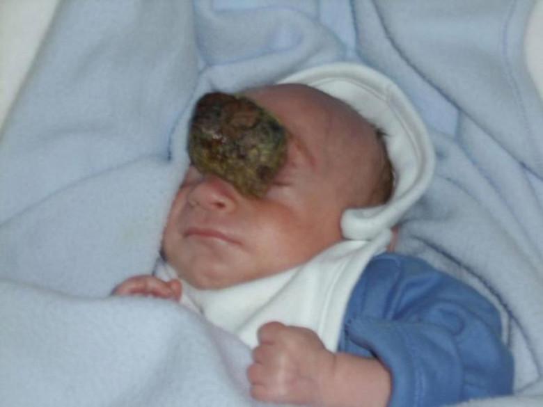 Мальчик, который родился с куском мозга наружу, отпраздновал 10-летие (5 фото)