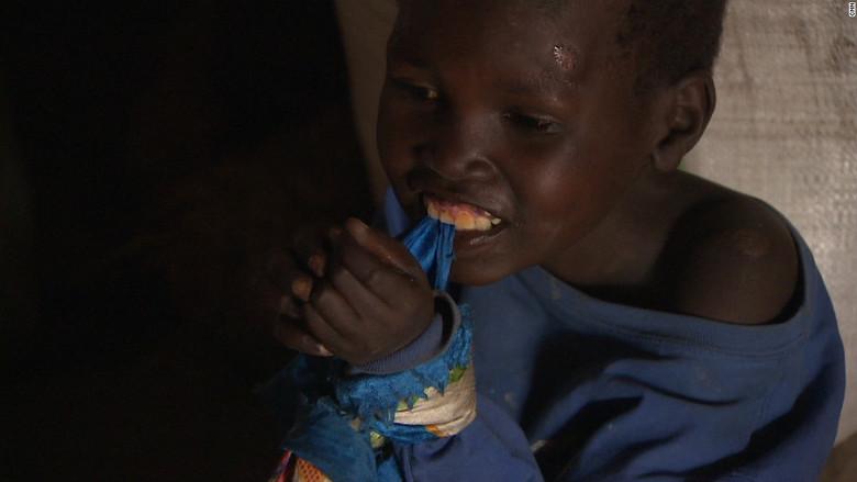 """Вот уже полвека загадочная болезнь превращает африканских детей в """"овощей"""" (10 фото)"""