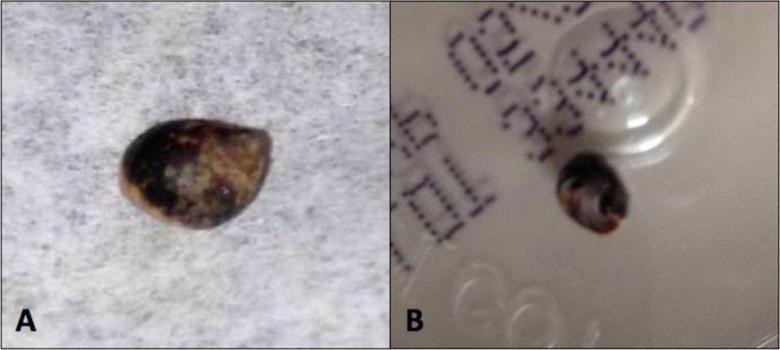 Уникальный медицинский случай: У мальчика в ране на руке неделю жила улитка (2 фото)