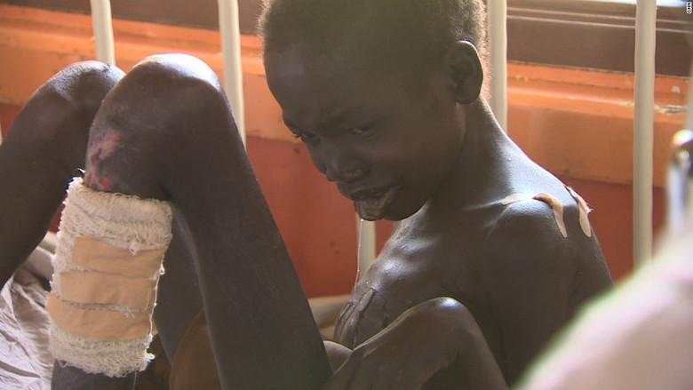 Африканские зомби (6 фото)