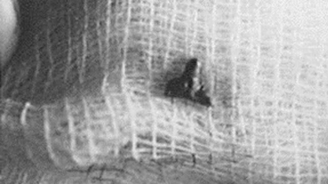 Доктор Роджер Лир и его исследование случаев внедрения в людей инопланетных имплантатов (7 фото)