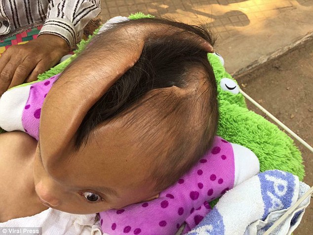 Младенец родился с раскрытым и деформированным черепом и до сих пор жив (5 фото)