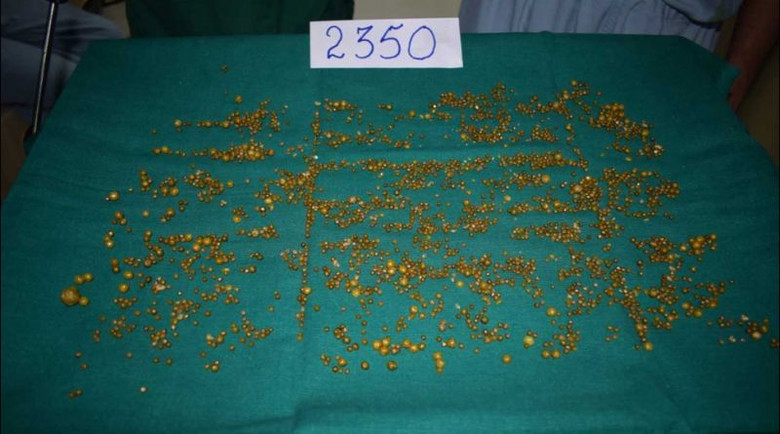 Из желчного пузыря индианки извлекли невероятные 2350 камней