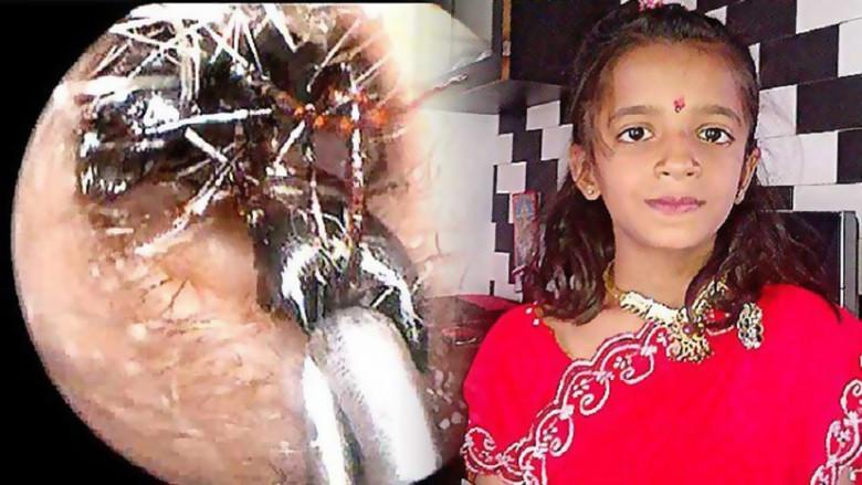 Странный медицинский случай в Индии: Из глаза девочки извлекли более 60 муравьев