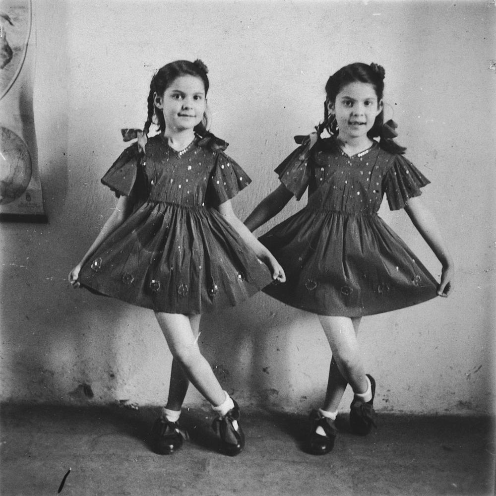 Жуткие эксперименты нацистов над близнецами