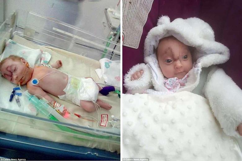 Девочка, родившая с мозгом наружу, выжила после сложной операции