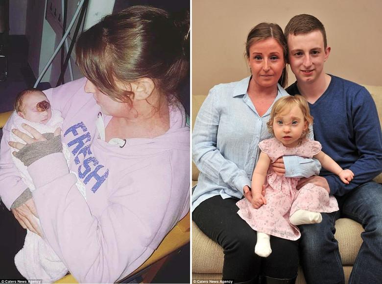 Единственный ребенок, который выжил с пятью опасными врожденными аномалиями, в том числе с частью мозга снаружи