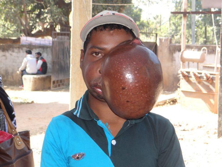 Индийца избавили от самой большой опухоли верхней челюсти в мире (18+) (4 фото)