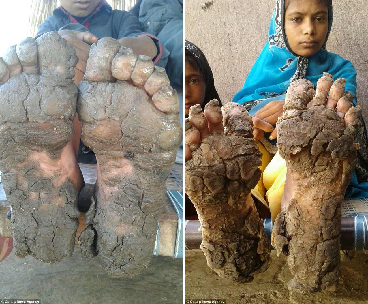 Из-за редкой аномалии руки и ноги братьев и сестер обрастают толстой жесткой коркой
