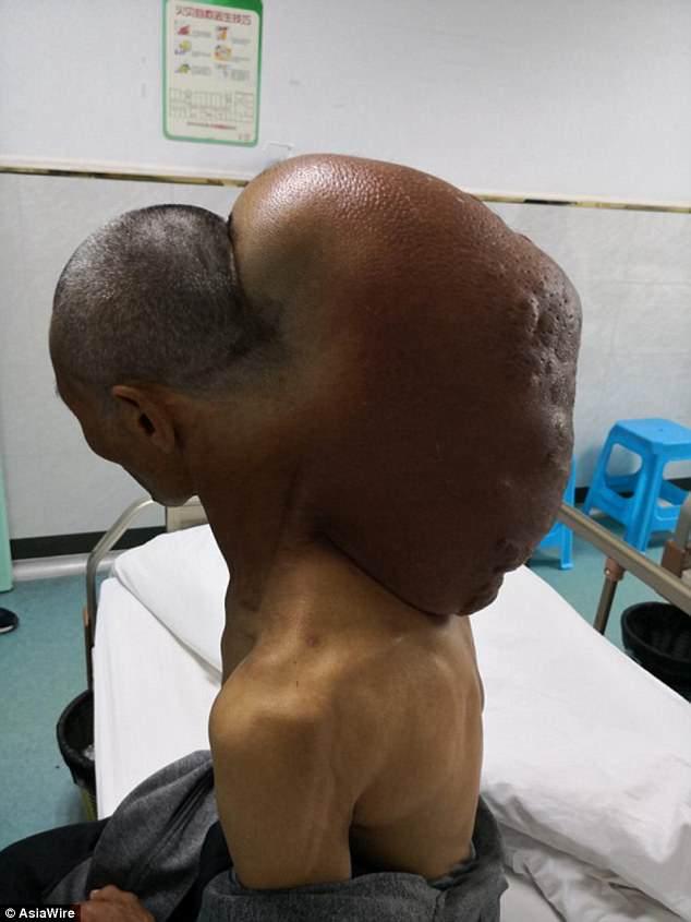 """Китаец 47 лет """"выращивал"""" на своей шее 15-килограммовую опухоль (5 фото)"""