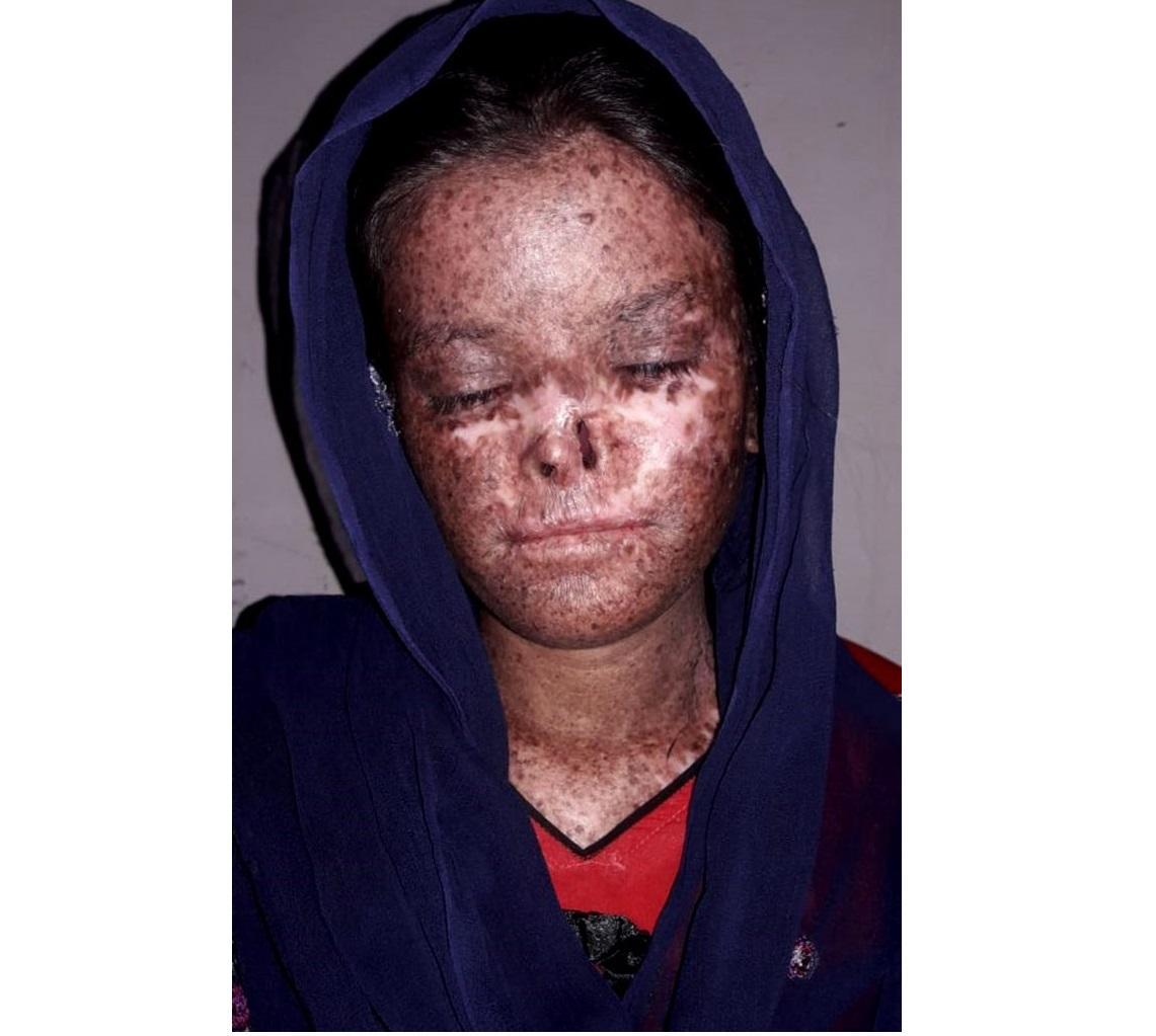 Из-за редкого генетического заболевания солнечный свет воздействует на их кожу как кислота