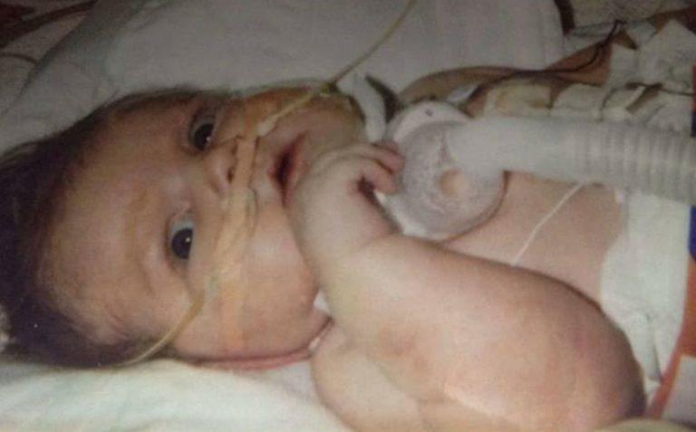 Родившийся с кучей патологий и почти всеми органами наружу мальчик отпраздновал свое 17-летие
